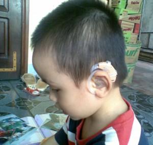 Cách sử dụng và bảo quản máy trợ thính